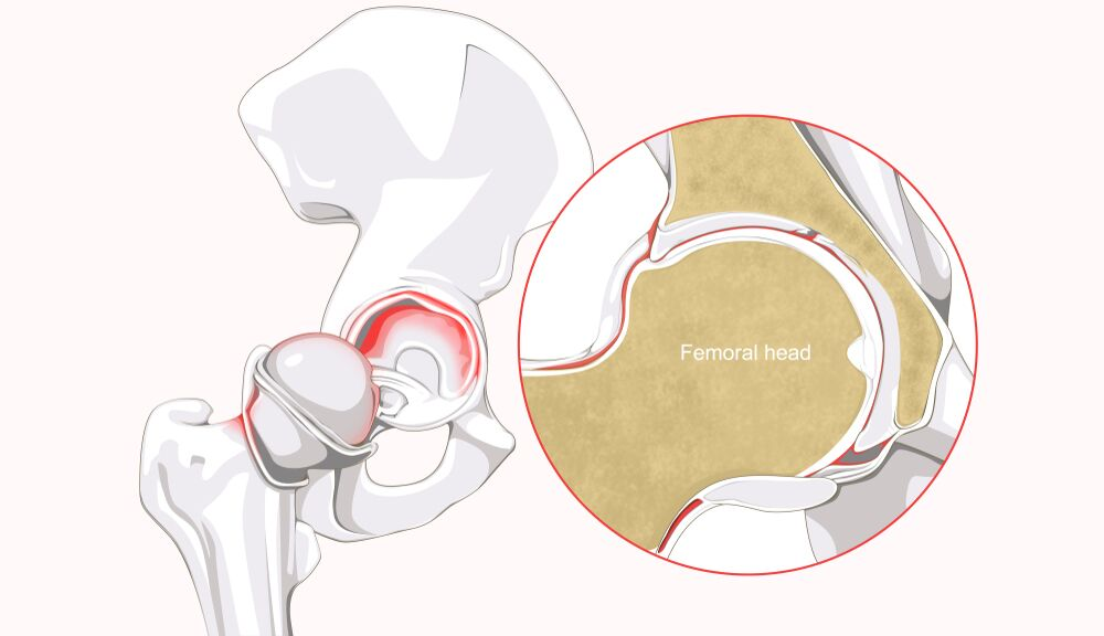 if abnormal structural physiology exists, such as femoroacetabular  impingement (fai) and dysplasia of the hip, this can increase the risk of a  labral tear